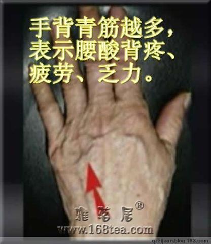 中医望诊  观青筋知健康 手诊图片