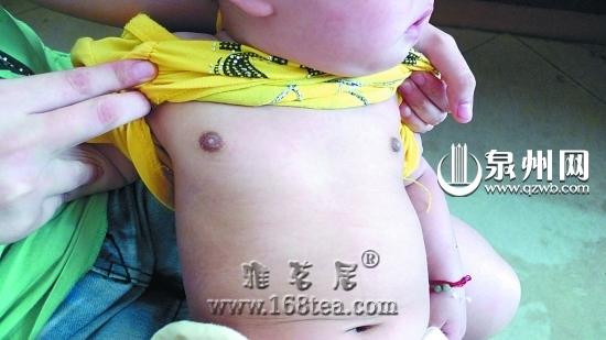 七月女婴性早熟 可能与奶粉或其他食物有关