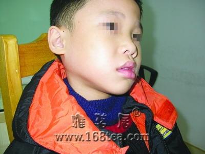 流行性腮腺炎症状
