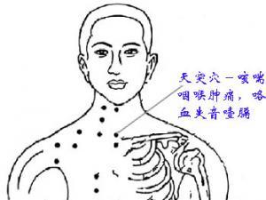 治疗梅核气的穴位按摩| 天突穴