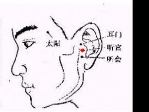 治疗耳鸣按摩法|治耳鸣穴位